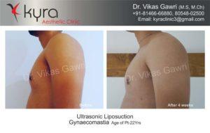 gynecomastia in punjab