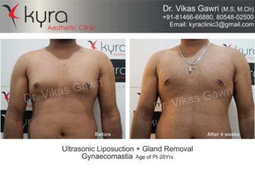 male breast reduction in ludhiana